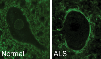 Antibodies surround a healthy motor neuron cell (left) and move to the outer cell membrane in ALS (right).