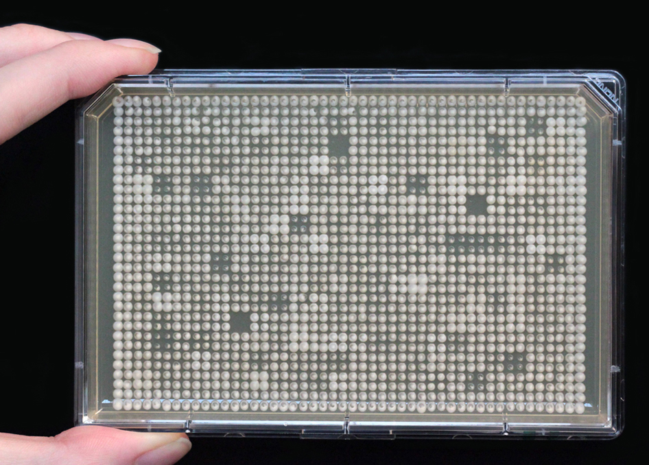 Arrays of mutant yeast strains in a Petri dish. The faster the cells grow, the bigger the size of colonies (dots).